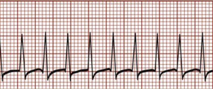 ECG | Quiz