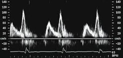 Mitral_valve_flow_pattern