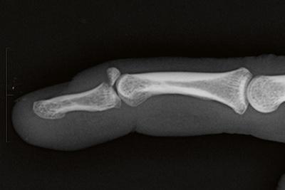 10-04-13-bony-mallet-fracture
