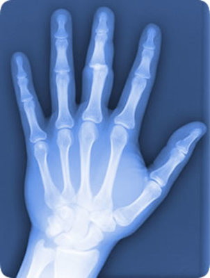 Dislocated-finger-xray