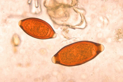 Desktop_eggs_of_trichuris_trichiura_and_trichuris_vulpis_06g0018_jpg_lores