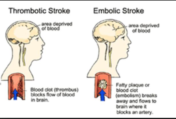 Ischemic Stroke   Mind Map